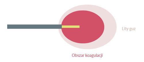 Schemat wprowadzenia igły echolasera do docelowego miejsca