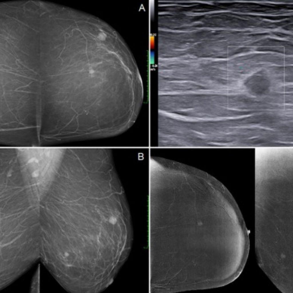 Biopsja aspiracyjna i ablacja laserowa w przypadku zmian piersi – analiza porównawcza